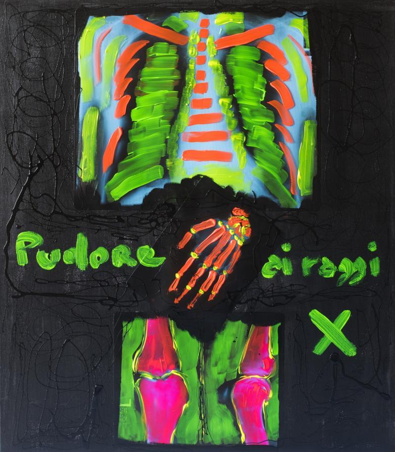 Pudore ai raggi X
